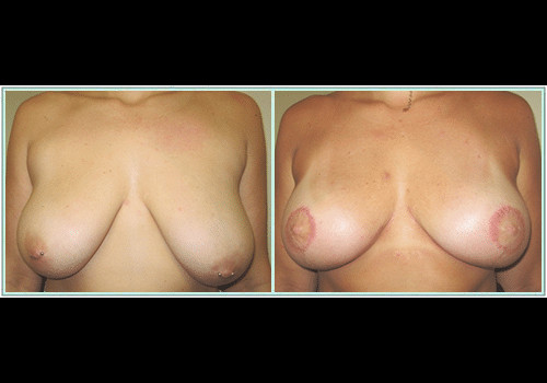 BREAST LIFT WITH IMPLANTS